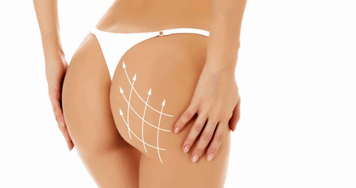 4 Sessões de Pump Glúteo  + 4 Sessões de Massagem Modeladora para você conquistar o Bumbum das Estrelas por APENAS R$49,90!!!